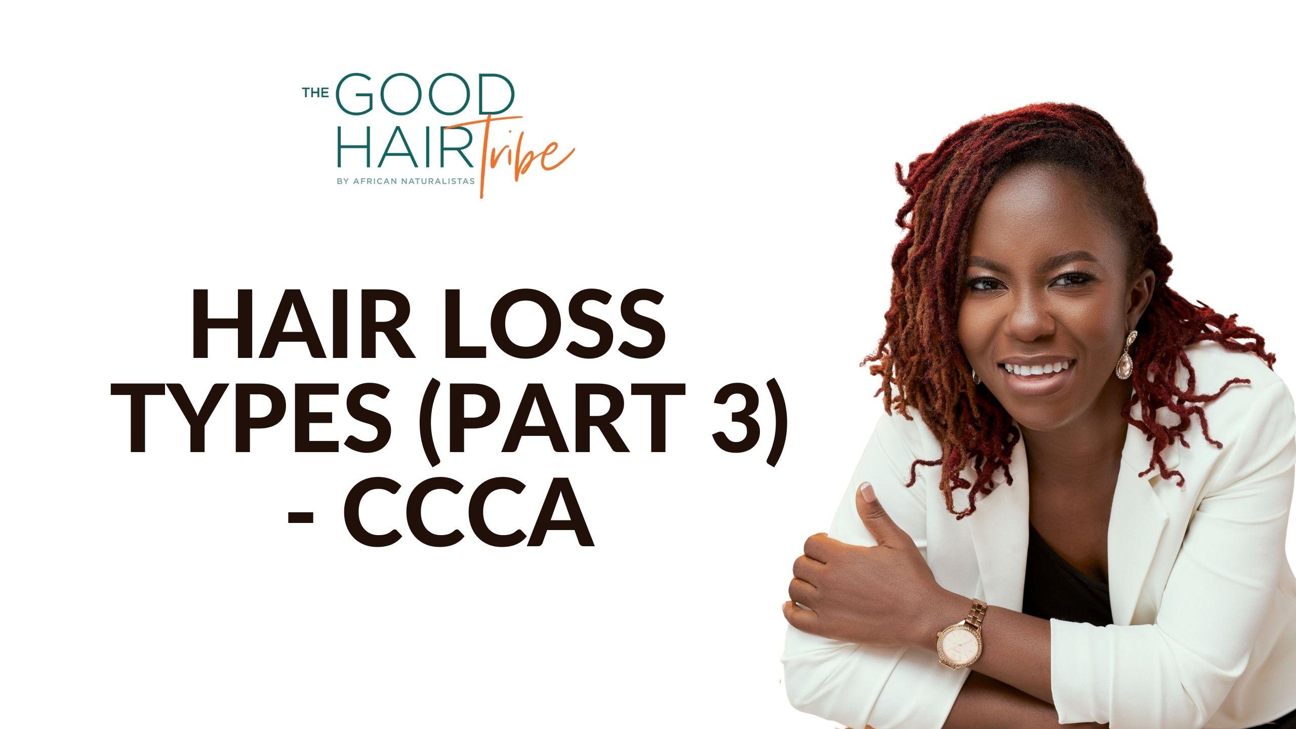 Hair Loss Types – Part 3