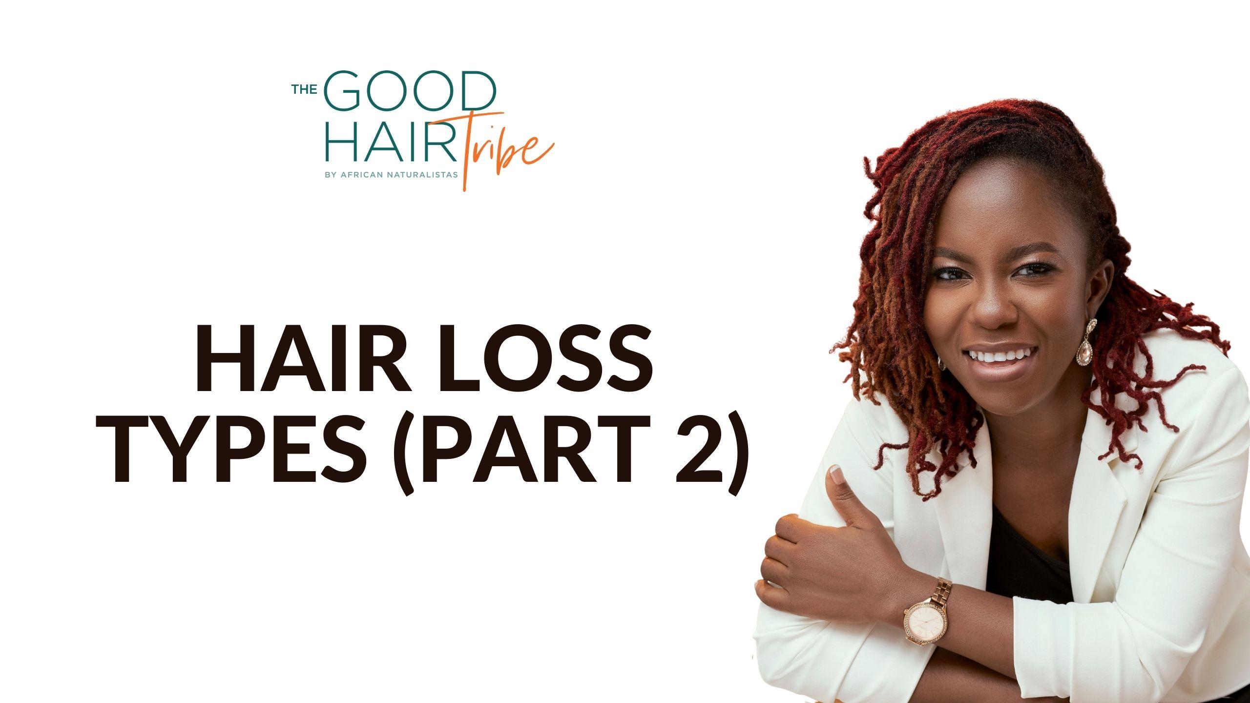 Hair Loss Types – Part 2